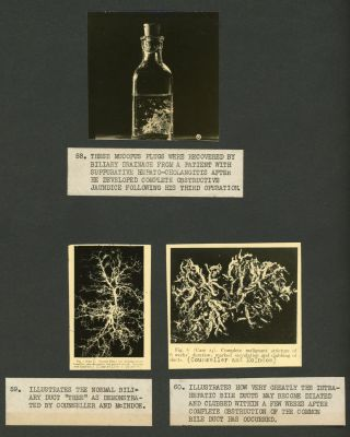SCIENTIFIC RESEARCH ON BILIARY DRAINAGE PHOTO ALBUM WITH RESEARCH WITH WOMEN CONTRIBUTORS 1935
