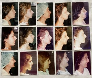 RHINOPLASTY BEFORE PHOTOS late 1960s - early 1980s