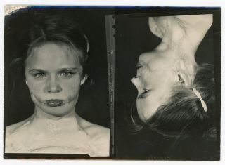 CHILD WITH SEVERE DEFORMITIES, PERHAPS FROM BURNS, OVER THE YEARS - MEDICAL PHOTOS